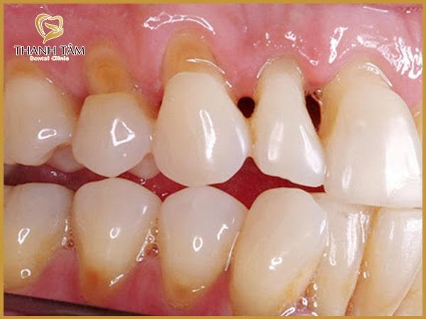 Nguyên nhân răng hở kẽ
