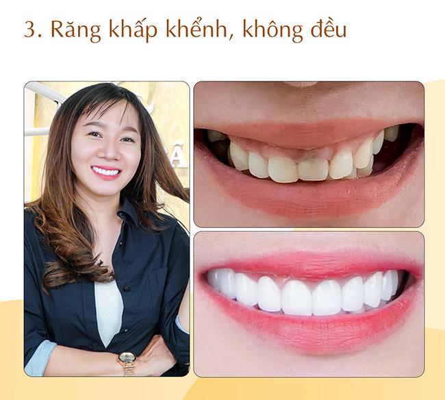 Răng mọc lệch khấp khểnh không đều