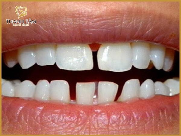 răng hở kẻ phải làm sao