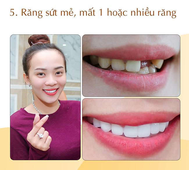 Răng sứt mẻ mất 1 hoặc nhiều răng