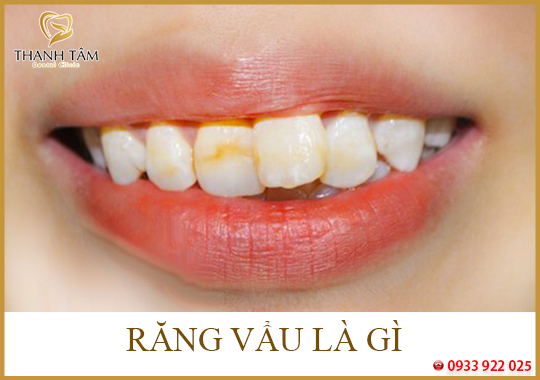Răng vẩu là gì?