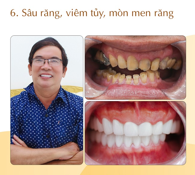 sâu răng viêm tủy mòn men răng