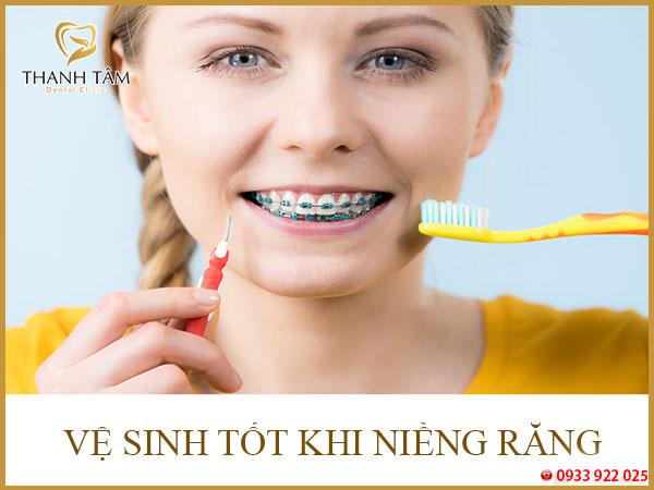 Giai đoạn niềng răng