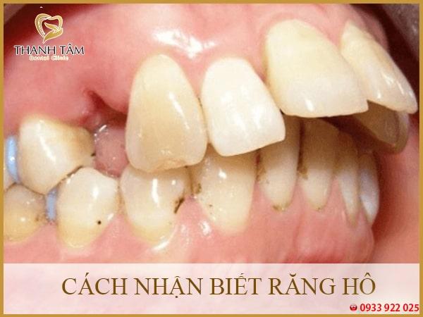 Cách nhận biết răng hô