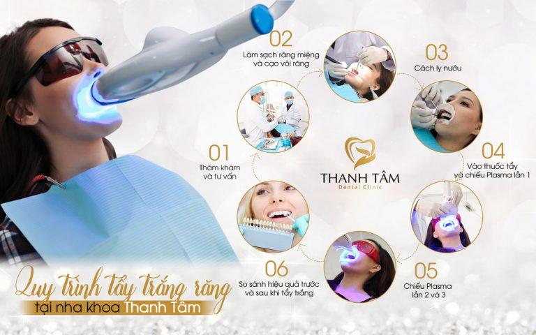 Quy trình tẩy trắng răng tại nha khoa Thanh Tâm-min
