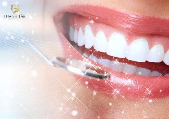 Răng sứ Cercon XT