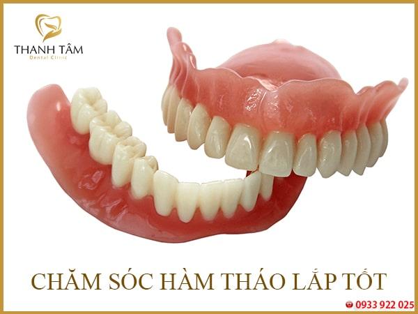 Hàm răng tháo lắp