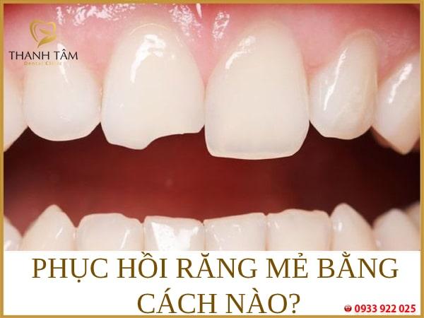 Phục hồi răng mẻ bằng cách nào?