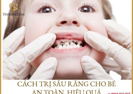 Trị răng sâu cho bé