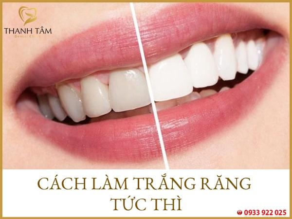 Cách làm trắng răng tức thì