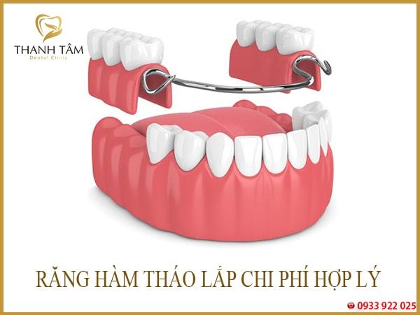 Răng giả tháo lắp là gì