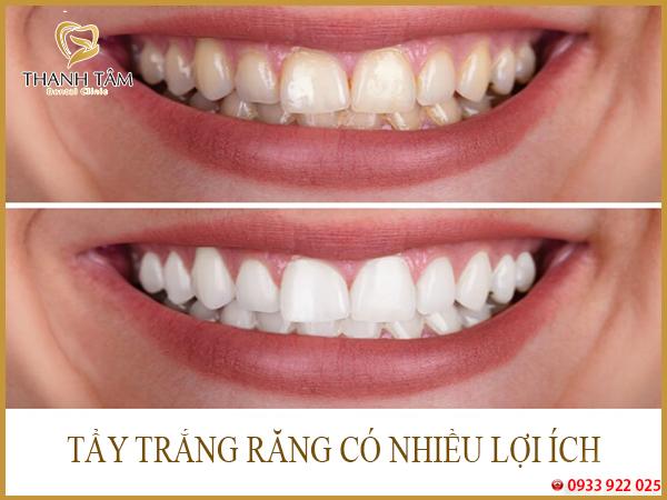 Tẩy trắng răng có tốt không
