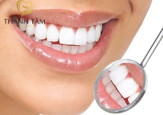 bọc răng sứ là gì