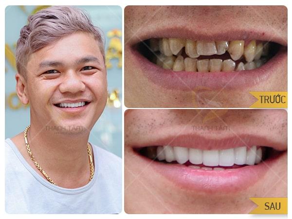 Bọc răng sứ hô móm tại nha khoa Thanh Tâm
