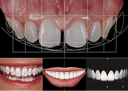 Phân tích Lựa chọn phương án thẩm mỹ răng