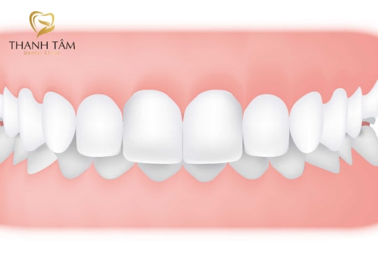 các kiểu răng hô