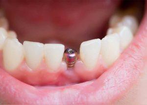 Những ai nên cấy ghép Implant