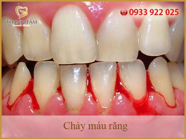 Nguyên nhân chảy máu răng là gì?