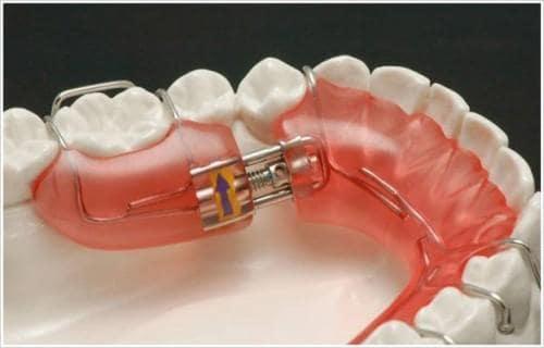 Răng tháo lắp là gì