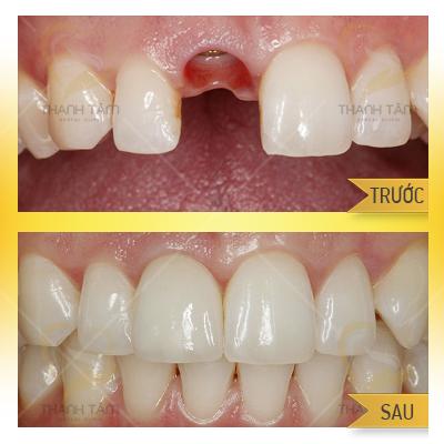 hình ảnh khách hàng cấy ghép implant tại nha khoa Thanh Tâm