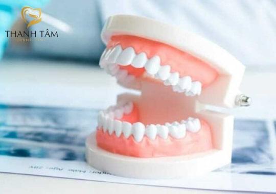 làm răng tháo lắp
