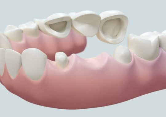 Cầu răng sứ có tốt không