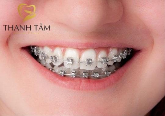 niềng răng mắc cài kim loại thường