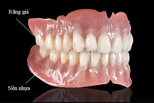 Khi nào nên làm răng tháo lắp