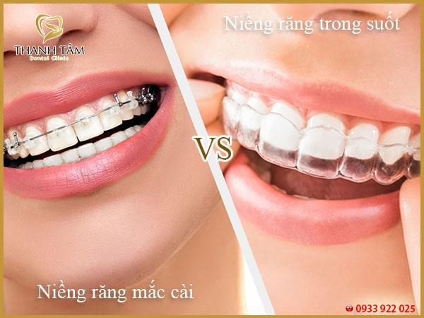 niềng răng mắc cài và niềng răng trong suốt-min