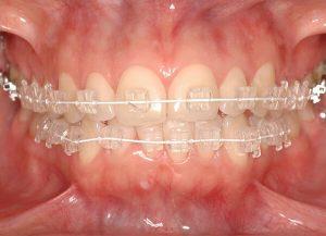 Khi nào nên niềng răng mắc cài pha lê