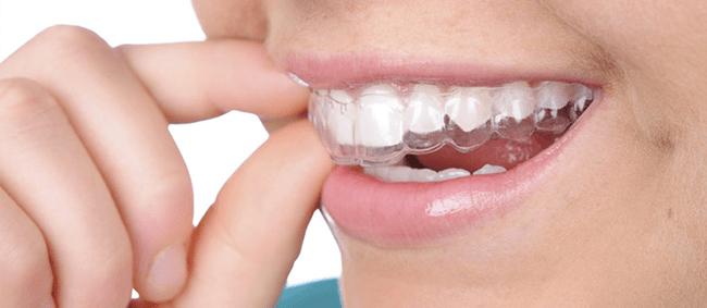 Niềng răng trong suốt invisalign nha khoa Thanh Tâm