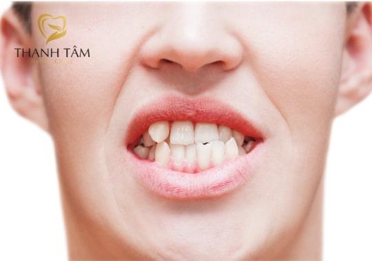răng bị hô nhẹ