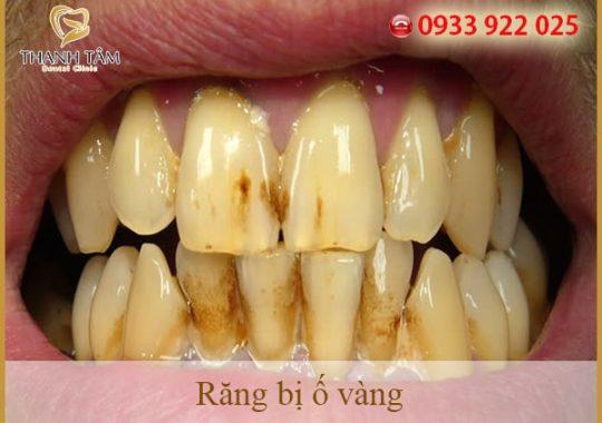 Chữa vàng răng như thế nào cho hiệu quả