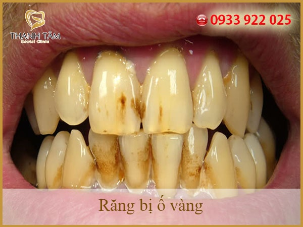 Khói thuốc lá làm cho răng trở nên ố vàng