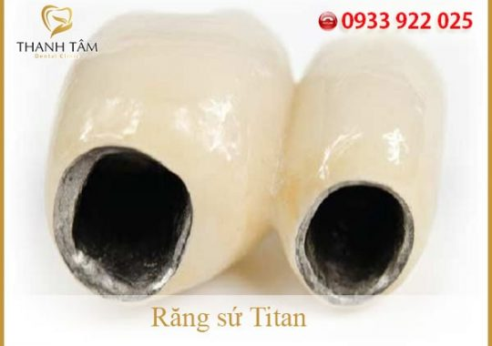 răng sứ Titan...-min