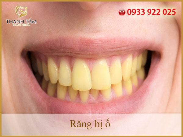 Răng bị ố ảnh hưởng như thế nào đến sự tự tin của bạn?