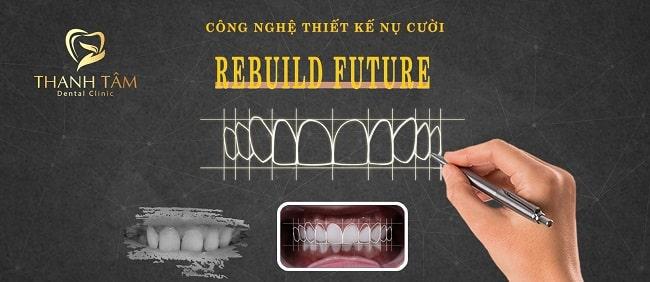 Công nghệ thiết kế nụ cười Rebuild Future