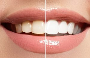 bao lâu tẩy trắng răng một lần
