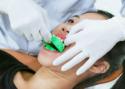 Lấy dấu răng