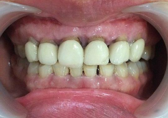 răng sứ kém chất lượng