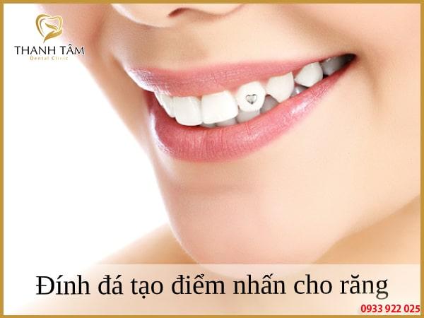 Đính đá giúp nụ cười trở nên cuốn hút hơn