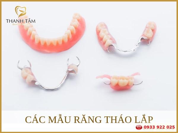 Răng tháo lắp