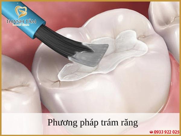 Phương pháp trám răng - khắc phục tình trạng sâu răng