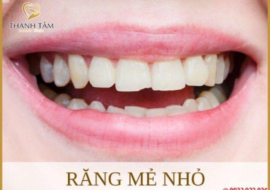 Răng mẻ