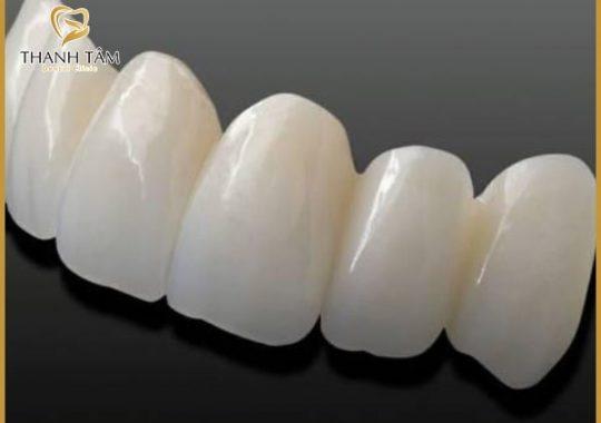 bọc răng loại nào tốt