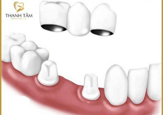 răng sứ Titan và Zirconia.