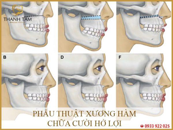 Phẫu thuật xương hàm chữa cười hở lợi