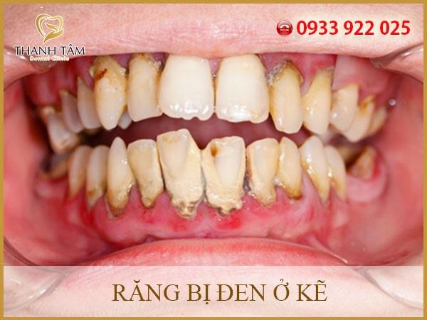 răng bị đen ở kẽ