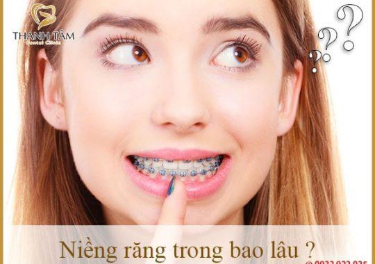 Niềng răng trong bao lâu-min