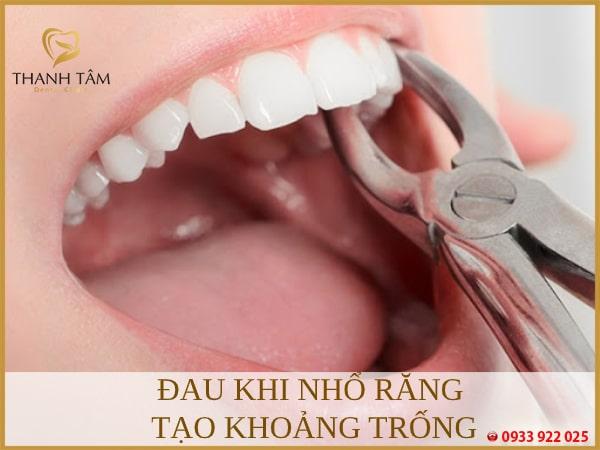 Giai đoạn nhổ răng tạo khoảng trống trên khung hàm cũng xuất hiện cơn đau